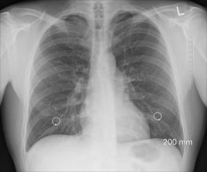 Zapalenie płuc - nie lekceważ objawów!