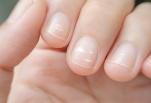 Zmiany paznokciowe u dzieci